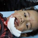 Child wounded in Taiz by random shelling.  Photo by activist for News & Letters