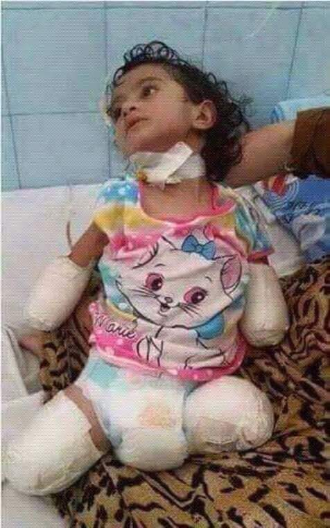 Yemen girl with no limbs