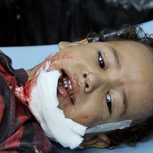 Child wounded in Taiz by random shelling. Photo by Khaled Al-Hamdani for News & Letters.